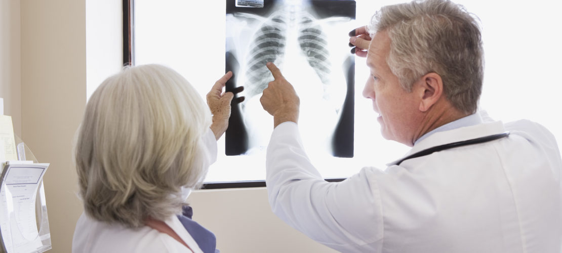 Doctors looking at chest x-ray